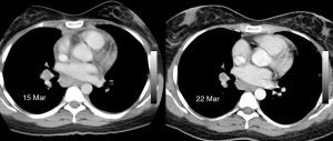 Axial contrast enhanced CT scans of 15 Mar and 22 Mar show partial regression of the subcarinal node.