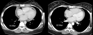 Axial contrast enhanced CT scans of 15 Mar and 22 Mar show partial regression of the pericardial effusion.