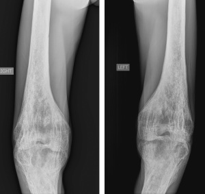 Frontal radiographs of both knees (fixed at flexion) show coarsening of the trabeculae and osteopenia at the lower ends of both femora.
