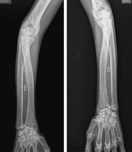 Frontal radiographs of both forearm show classic interosseous membrane calcification (arrows).